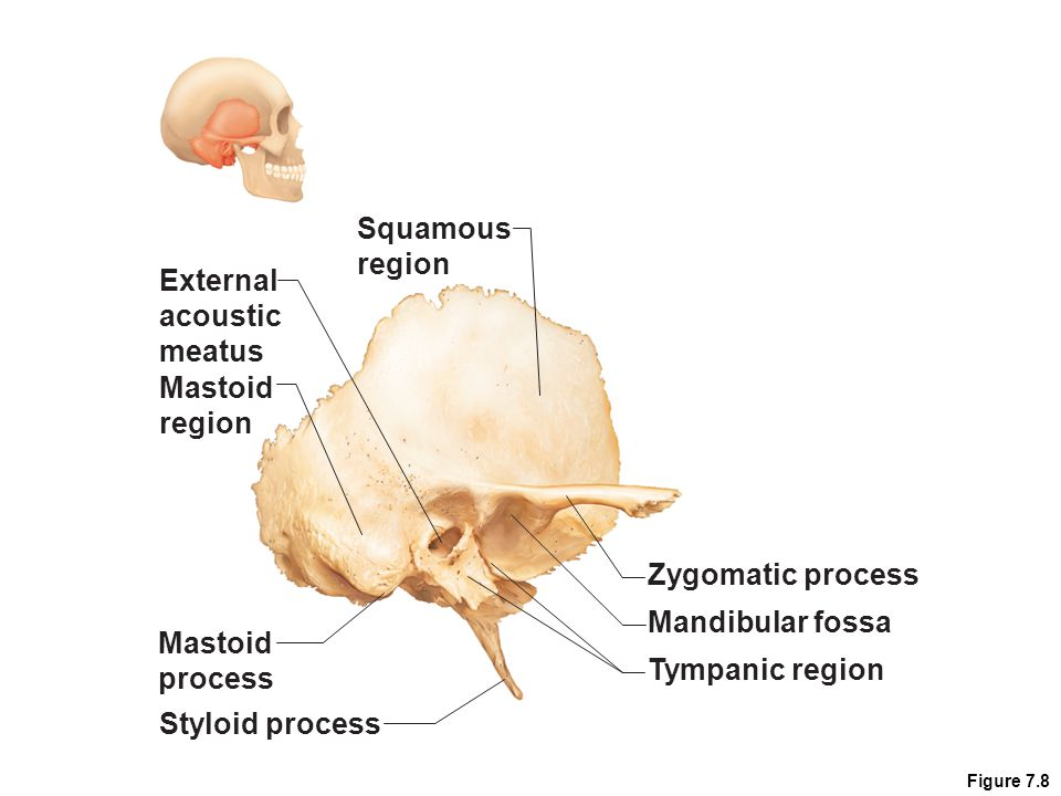 Squamous region External acoustic meatus Mastoid region