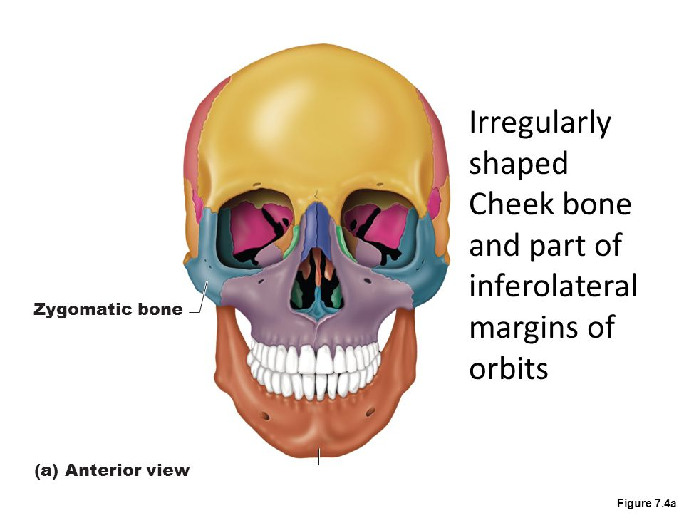 Cheek bone and part of inferolateral margins of orbits
