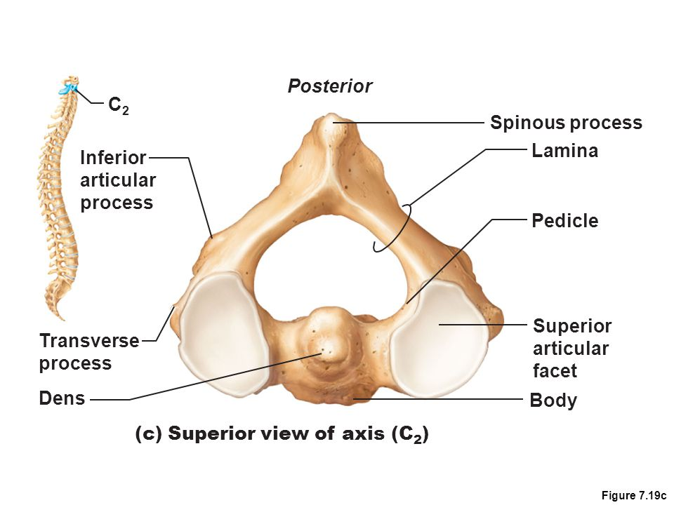 (c) Superior view of axis (C2)