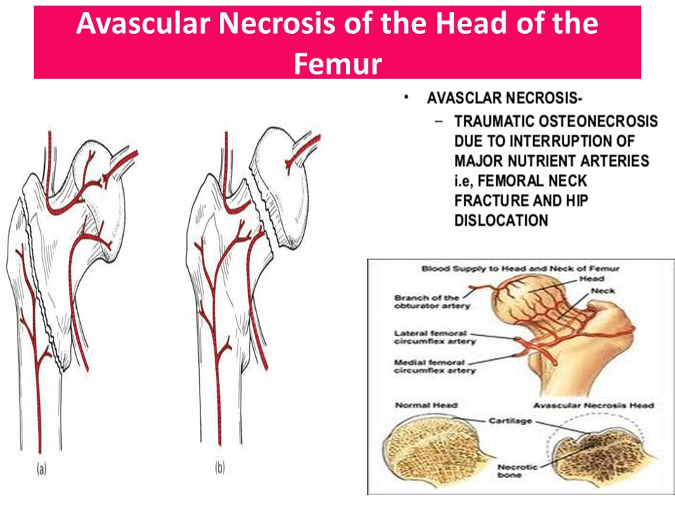 Avascular Necrosis of the Head of the Femur