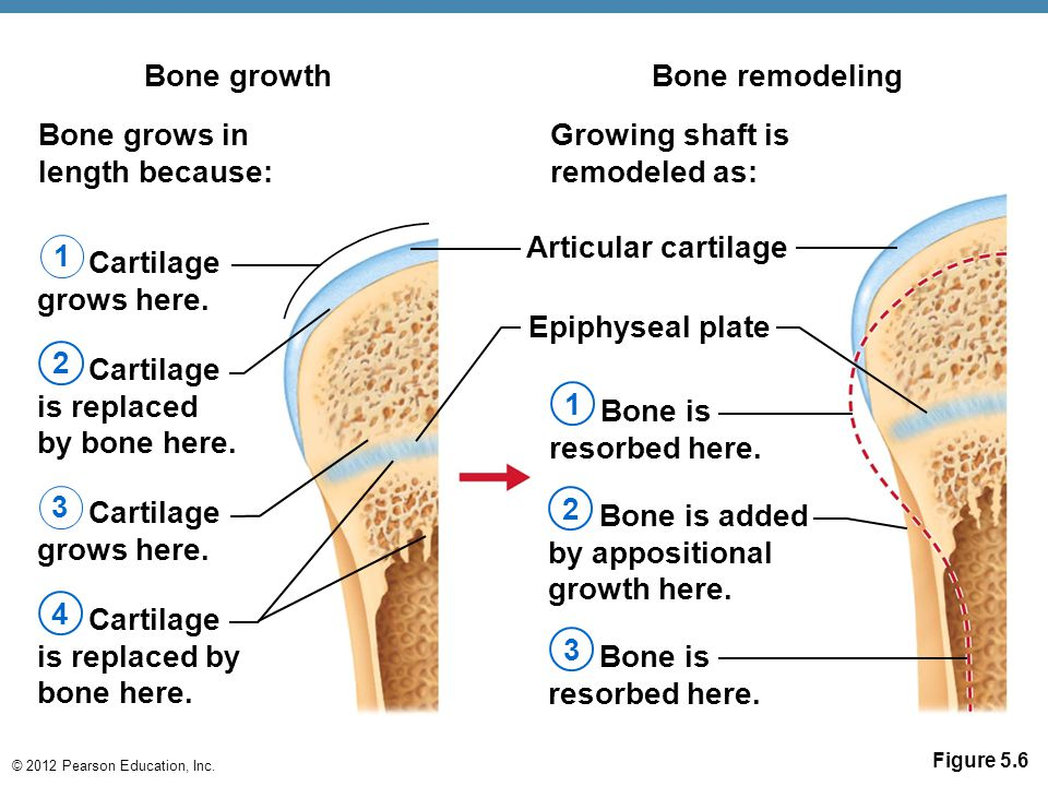 is replaced by bone here. 4 Bone is resorbed here. 3