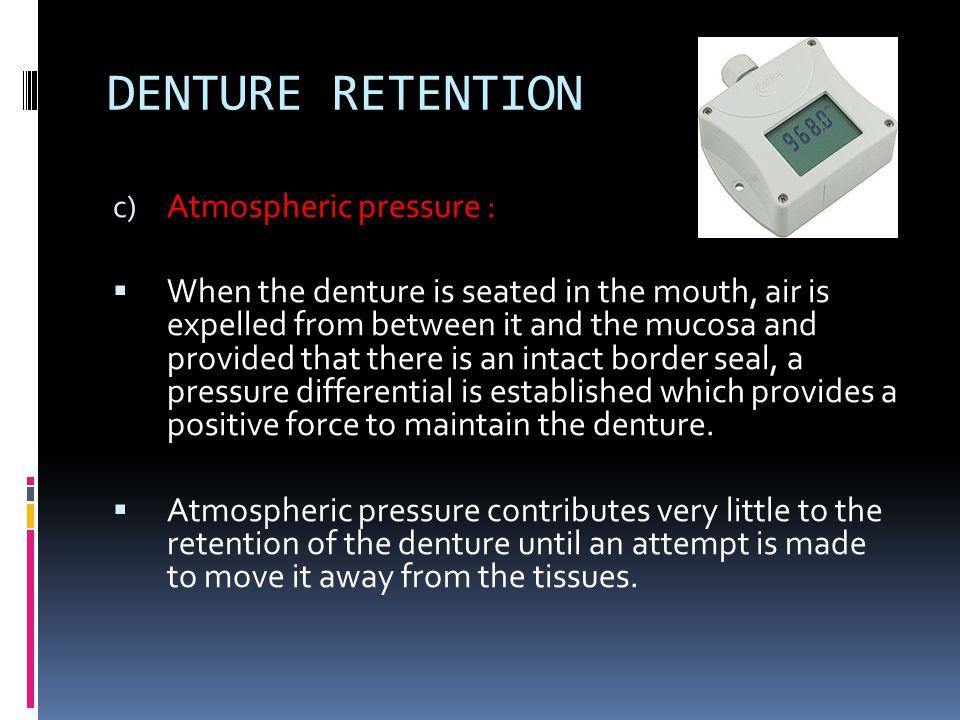 DENTURE RETENTION Atmospheric pressure :