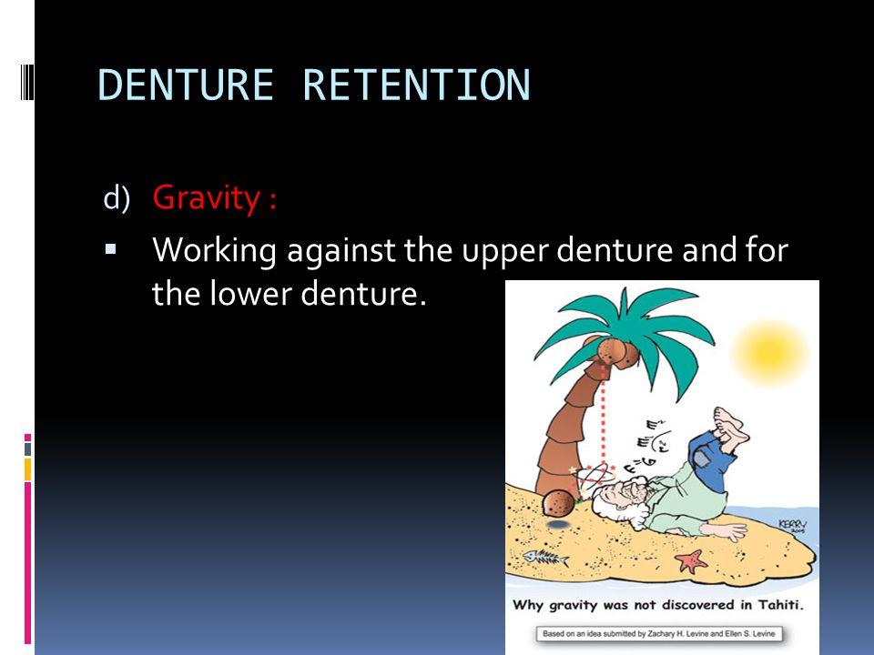 DENTURE RETENTION Gravity :