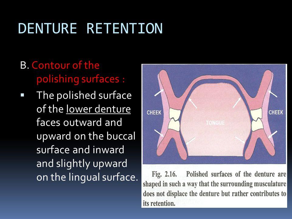 DENTURE RETENTION B. Contour of the polishing surfaces :
