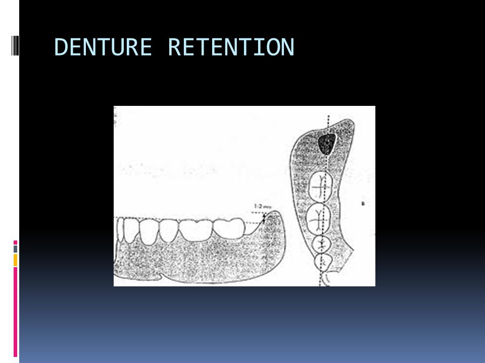DENTURE RETENTION