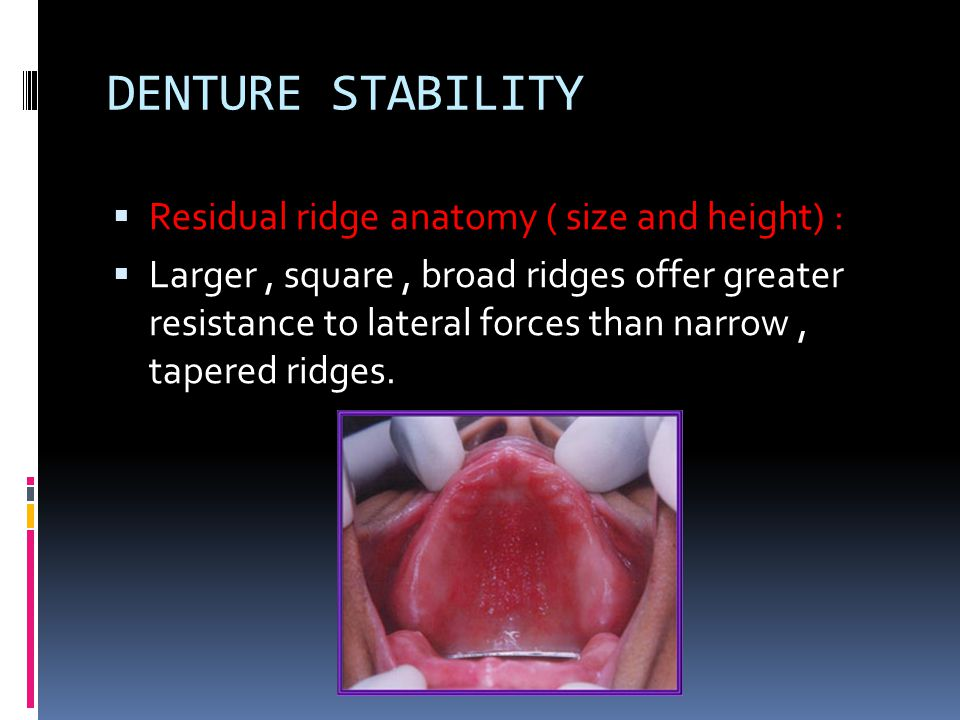 DENTURE STABILITY Residual ridge anatomy ( size and height) :
