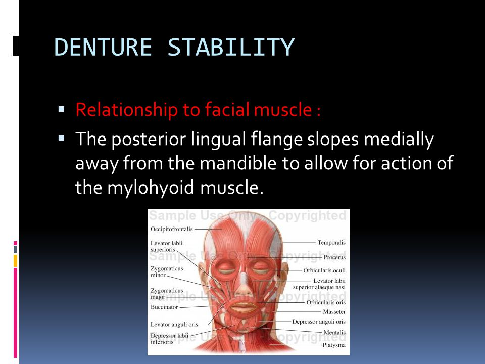 DENTURE STABILITY Relationship to facial muscle :