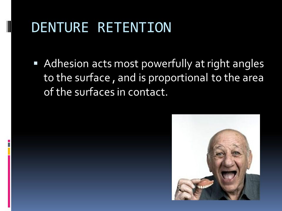 DENTURE RETENTION Adhesion acts most powerfully at right angles to the surface , and is proportional to the area of the surfaces in contact.