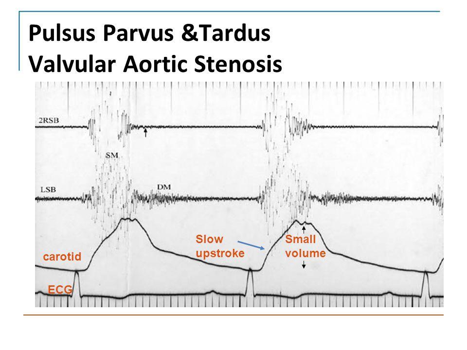 Pulsus Parvus &Tardus Valvular Aortic Stenosis