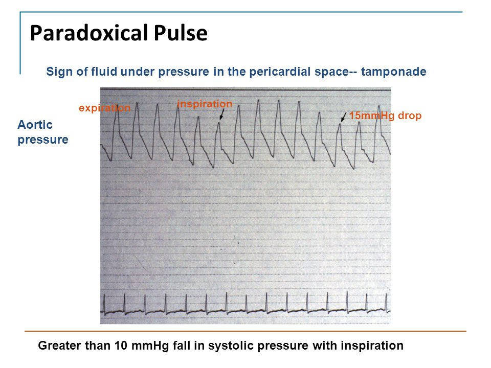 Paradoxical Pulse Sign of fluid under pressure in the pericardial space-- tamponade. inspiration. expiration.