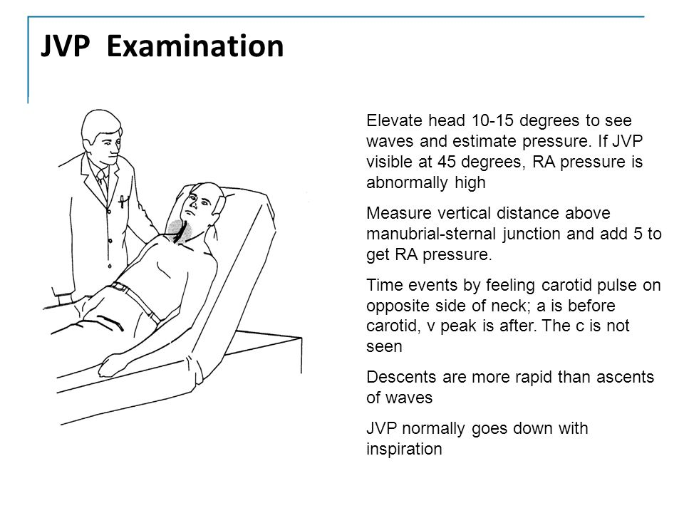 JVP Examination Elevate head 10-15 degrees to see waves and estimate pressure. If JVP visible at 45 degrees, RA pressure is abnormally high.