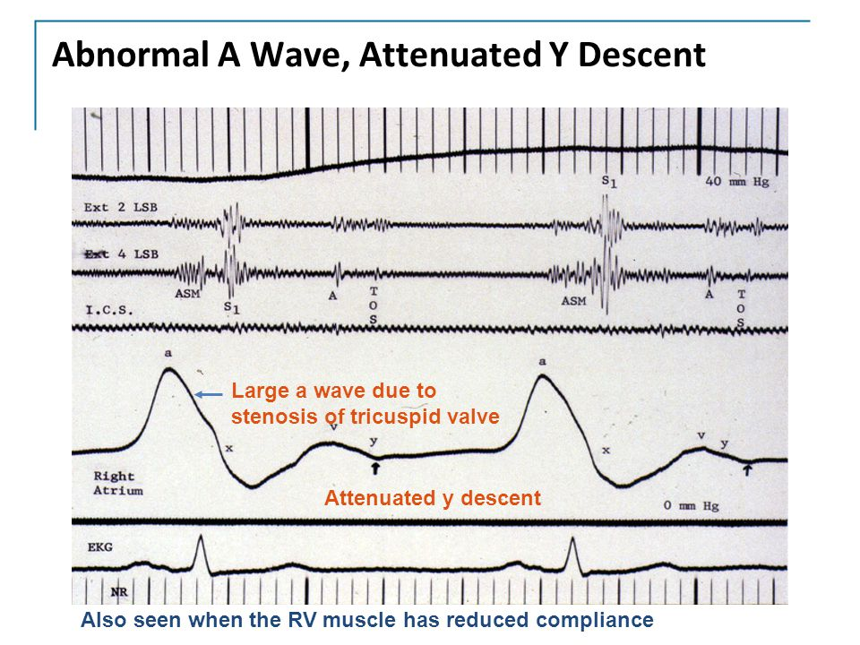 Abnormal A Wave, Attenuated Y Descent