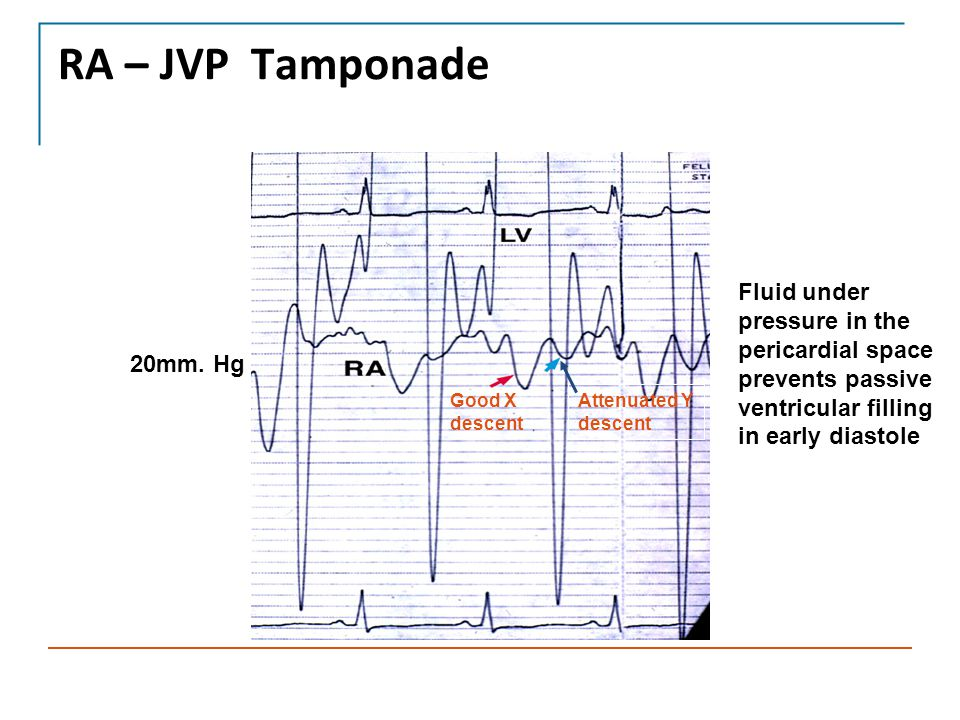 RA – JVP Tamponade Fluid under pressure in the pericardial space prevents passive ventricular filling in early diastole.