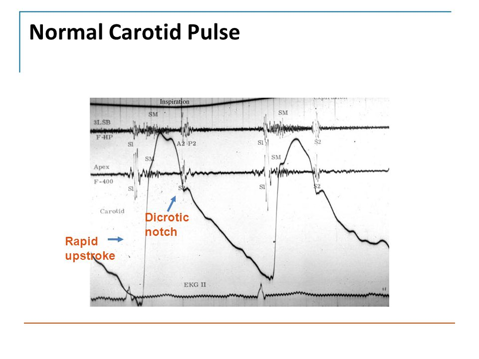 Normal Carotid Pulse Dicrotic notch Rapid upstroke