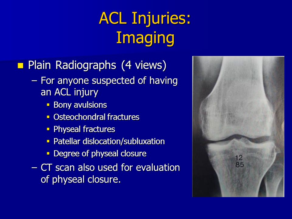 ACL Injuries: Imaging Plain Radiographs (4 views)