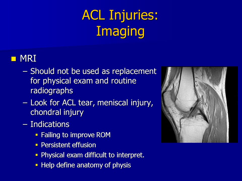 ACL Injuries: Imaging MRI
