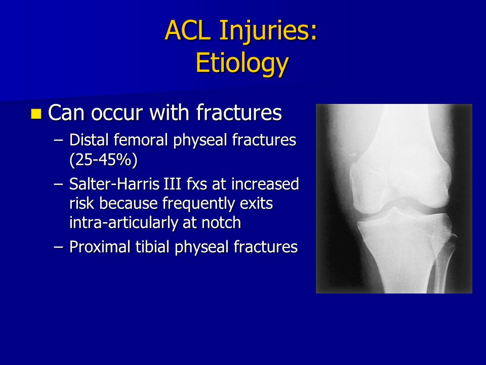 ACL Injuries: Etiology
