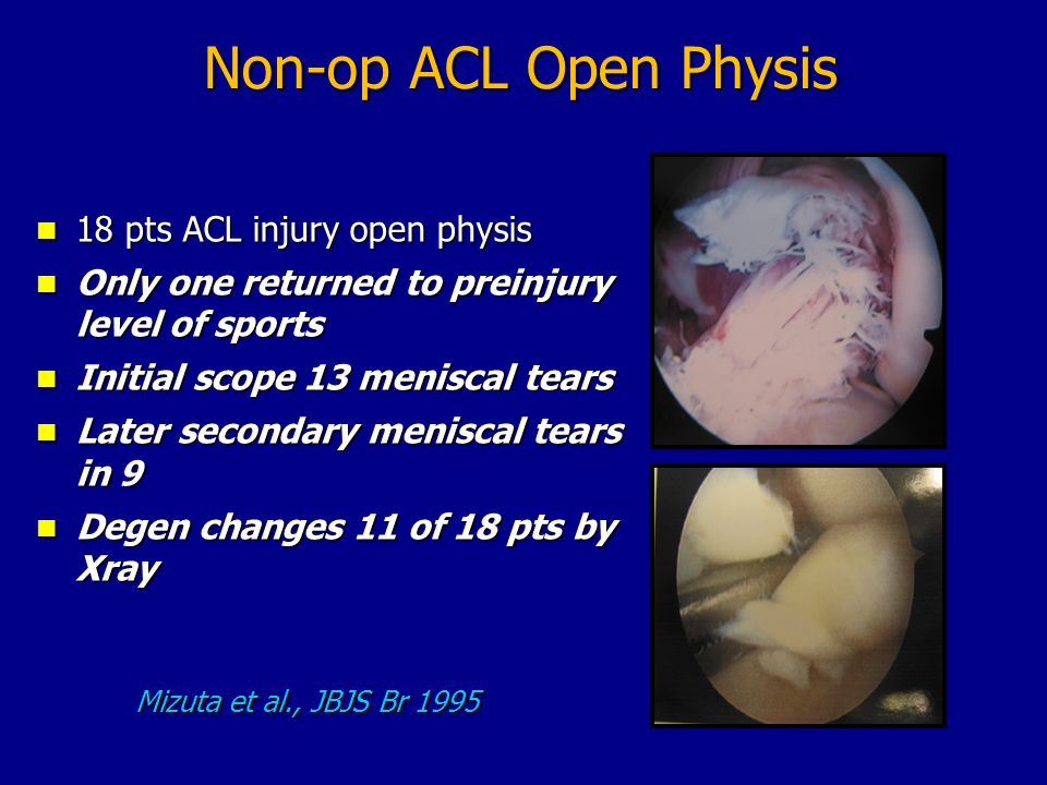 Non-op ACL Open Physis 18 pts ACL injury open physis