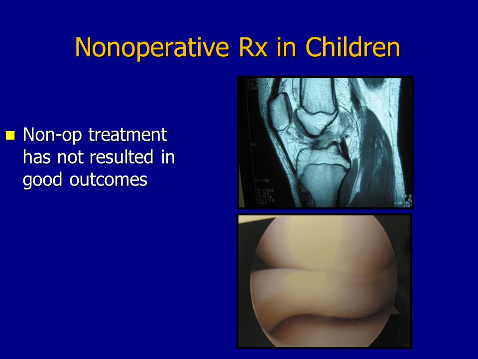 Nonoperative Rx in Children