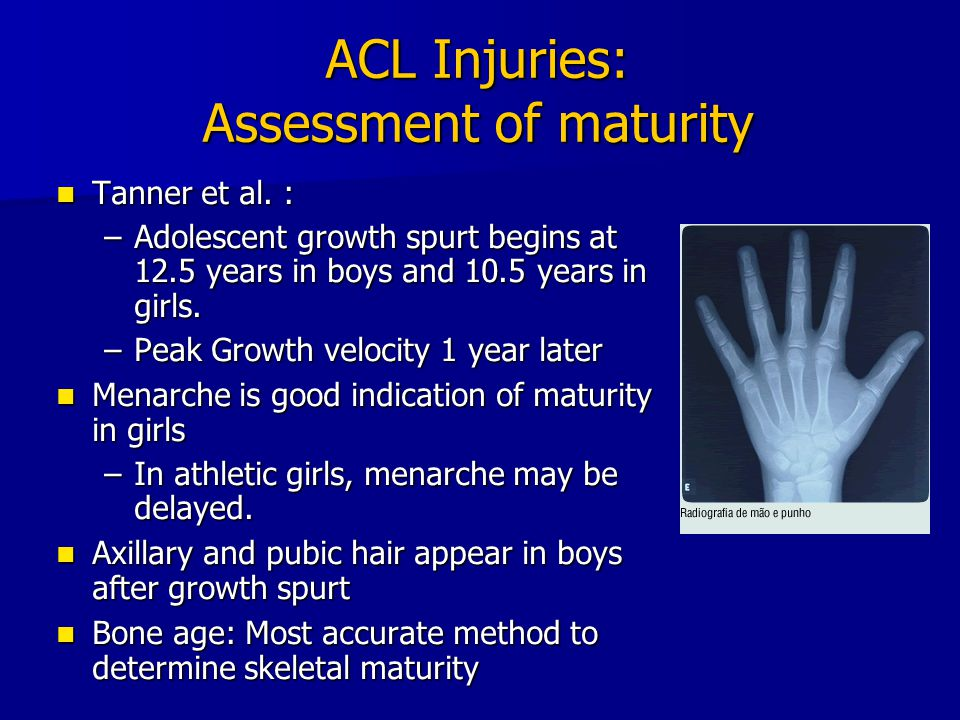 ACL Injuries: Assessment of maturity