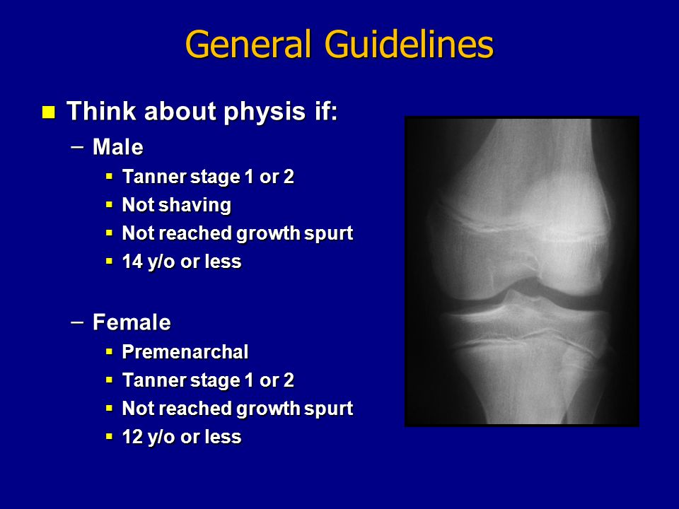 General Guidelines Think about physis if: Male Female