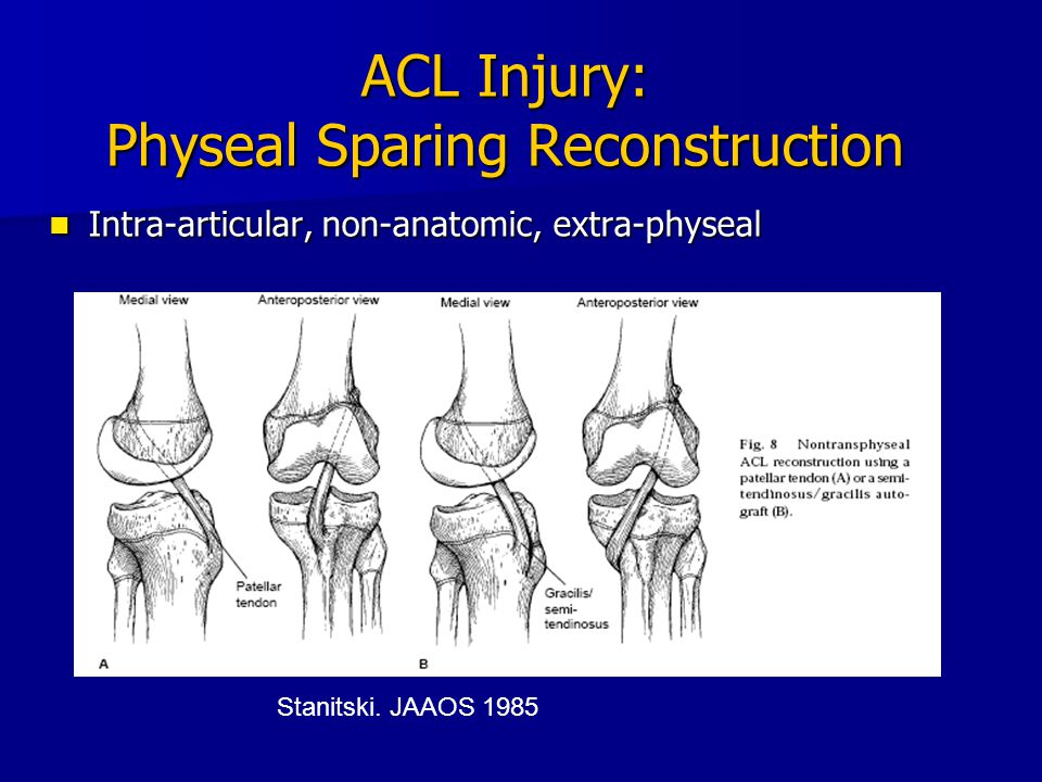 ACL Injury: Physeal Sparing Reconstruction