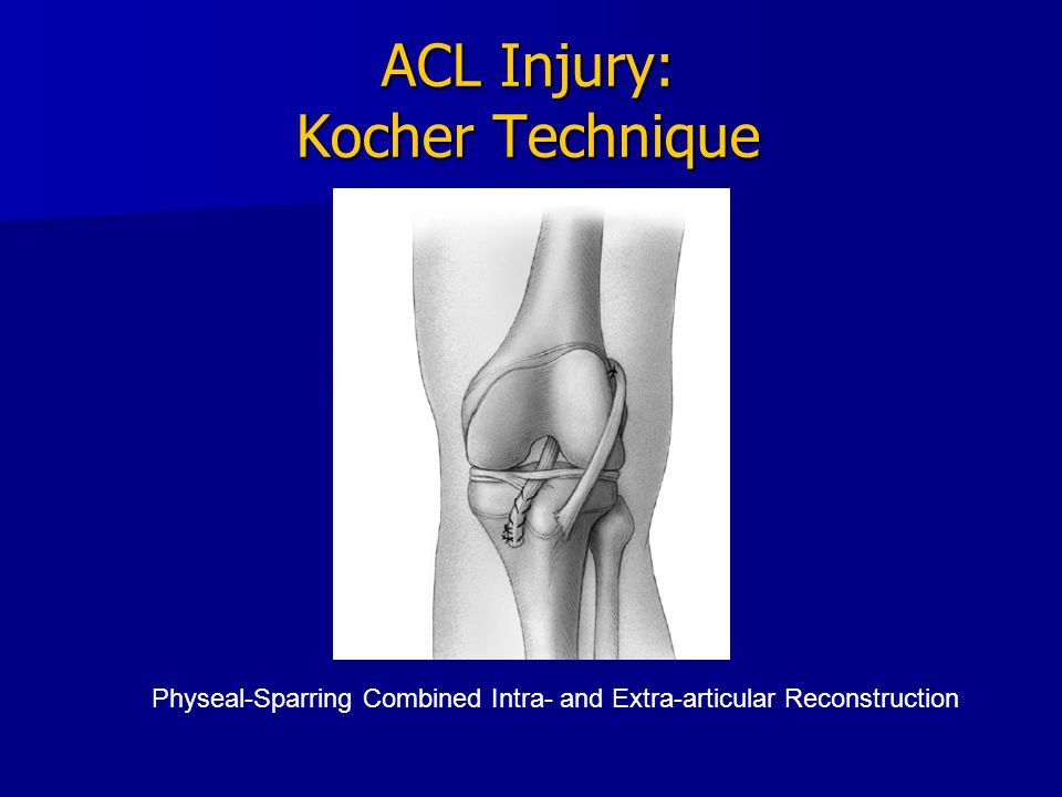 ACL Injury: Kocher Technique