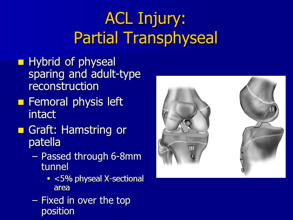 ACL Injury: Partial Transphyseal