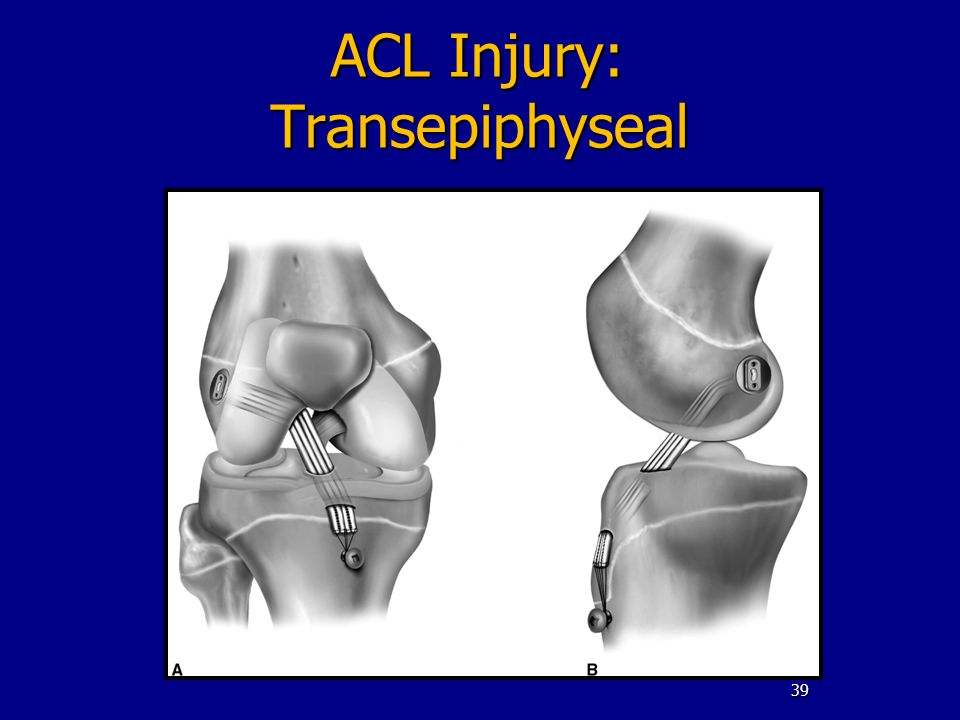 ACL Injury: Transepiphyseal