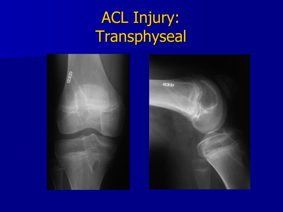 ACL Injury: Transphyseal