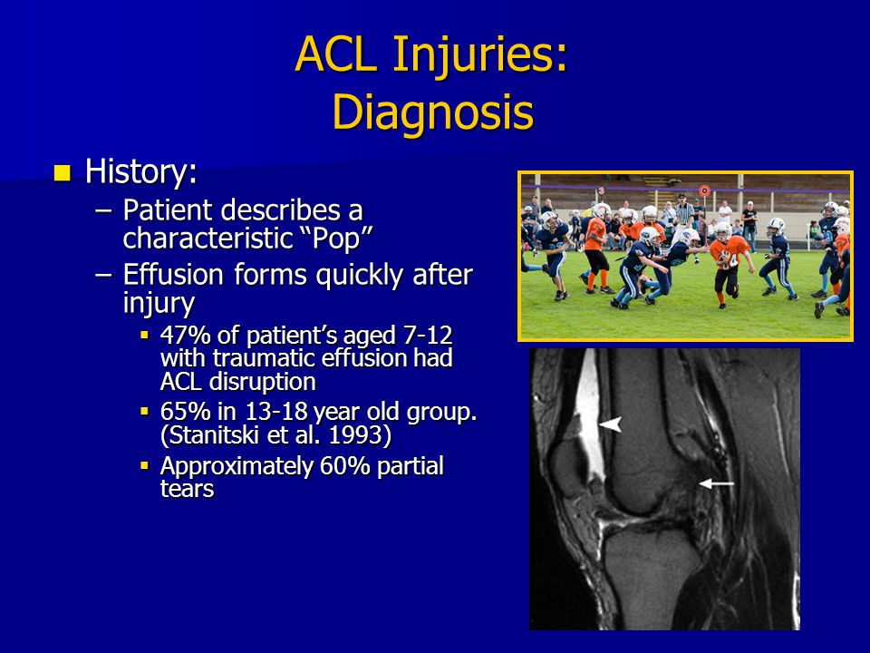ACL Injuries: Diagnosis