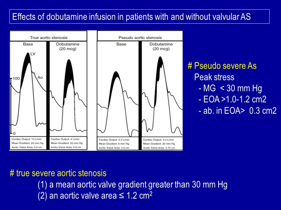 Effects of dobutamine infusion in patients with and without valvular AS