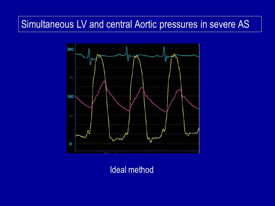 Simultaneous LV and central Aortic pressures in severe AS