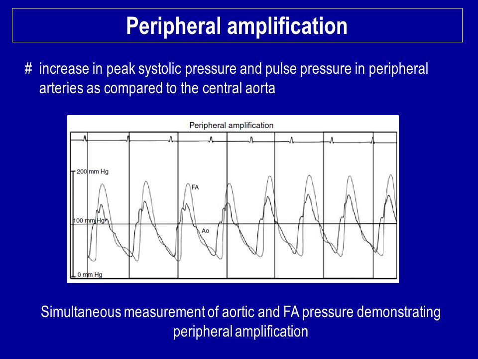 Peripheral amplification