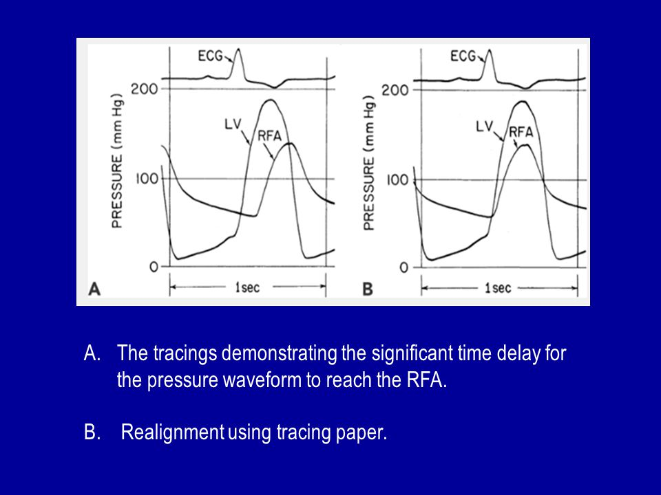 The tracings demonstrating the significant time delay for the pressure waveform to reach the RFA.