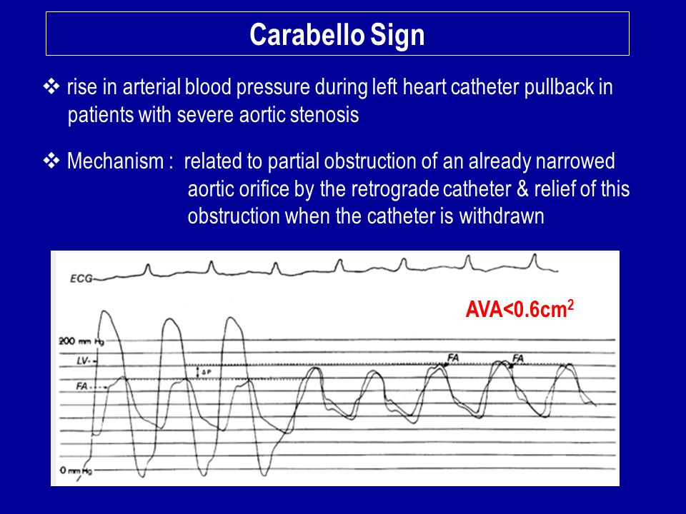 Carabello Sign rise in arterial blood pressure during left heart catheter pullback in. patients with severe aortic stenosis.