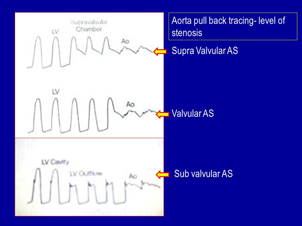 Aorta pull back tracing- level of stenosis