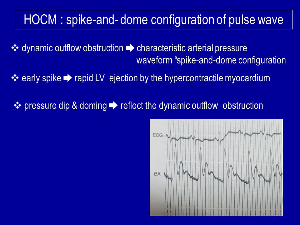 HOCM : spike-and- dome configuration of pulse wave