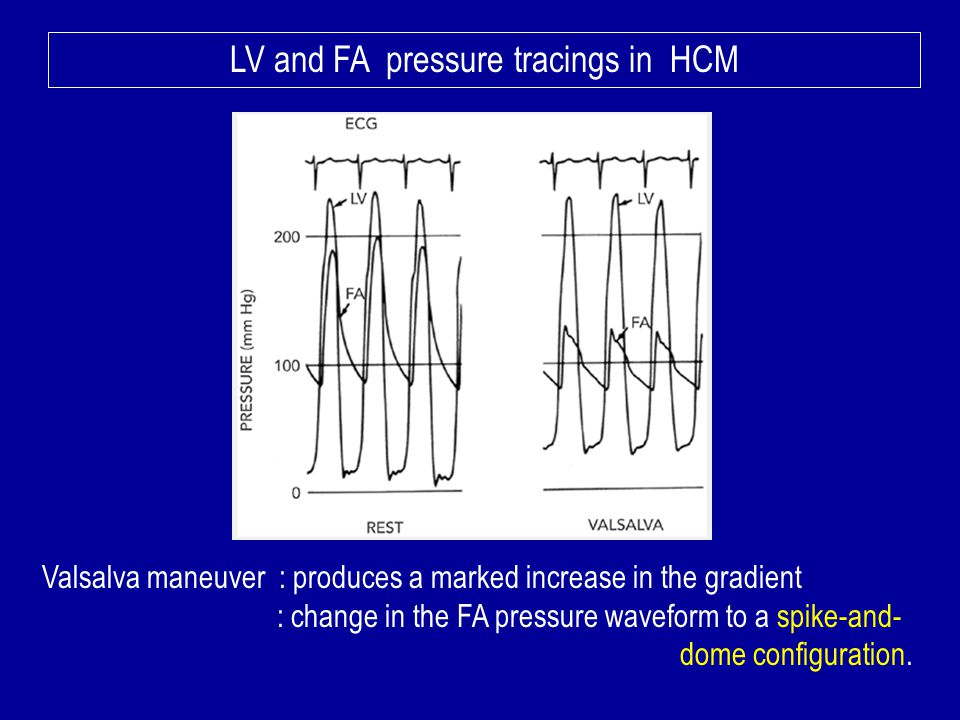 LV and FA pressure tracings in HCM