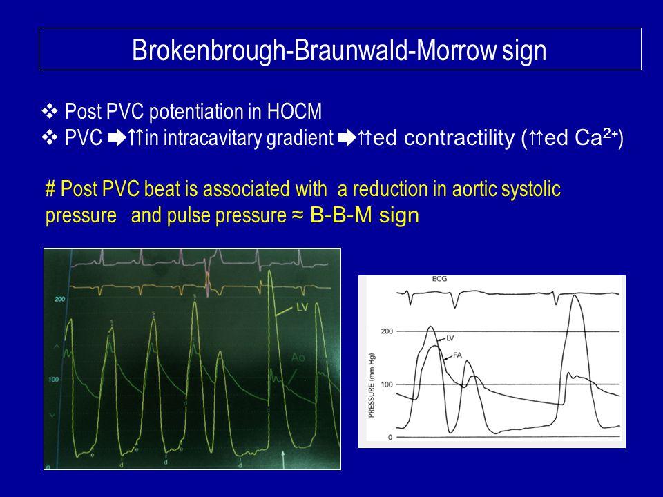 Brokenbrough-Braunwald-Morrow sign