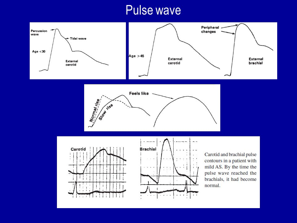 Pulse wave