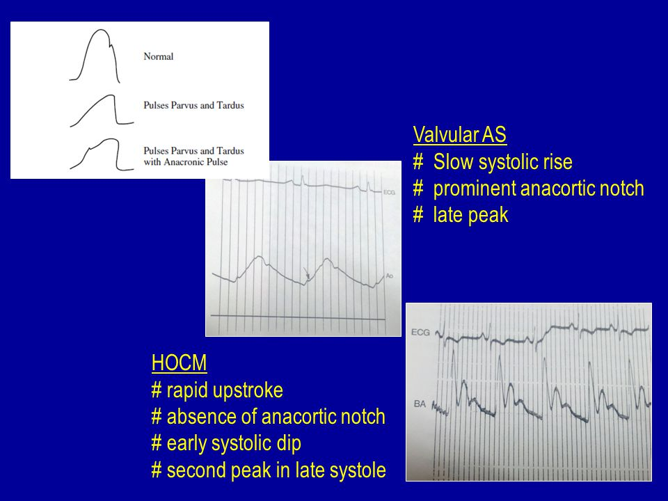Valvular AS # Slow systolic rise. # prominent anacortic notch. # late peak. HOCM. # rapid upstroke.