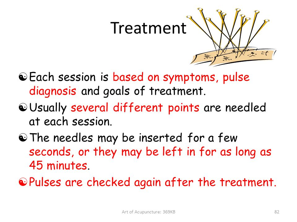 Treatment Each session is based on symptoms, pulse diagnosis and goals of treatment. Usually several different points are needled at each session.