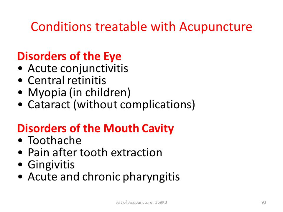 Conditions treatable with Acupuncture