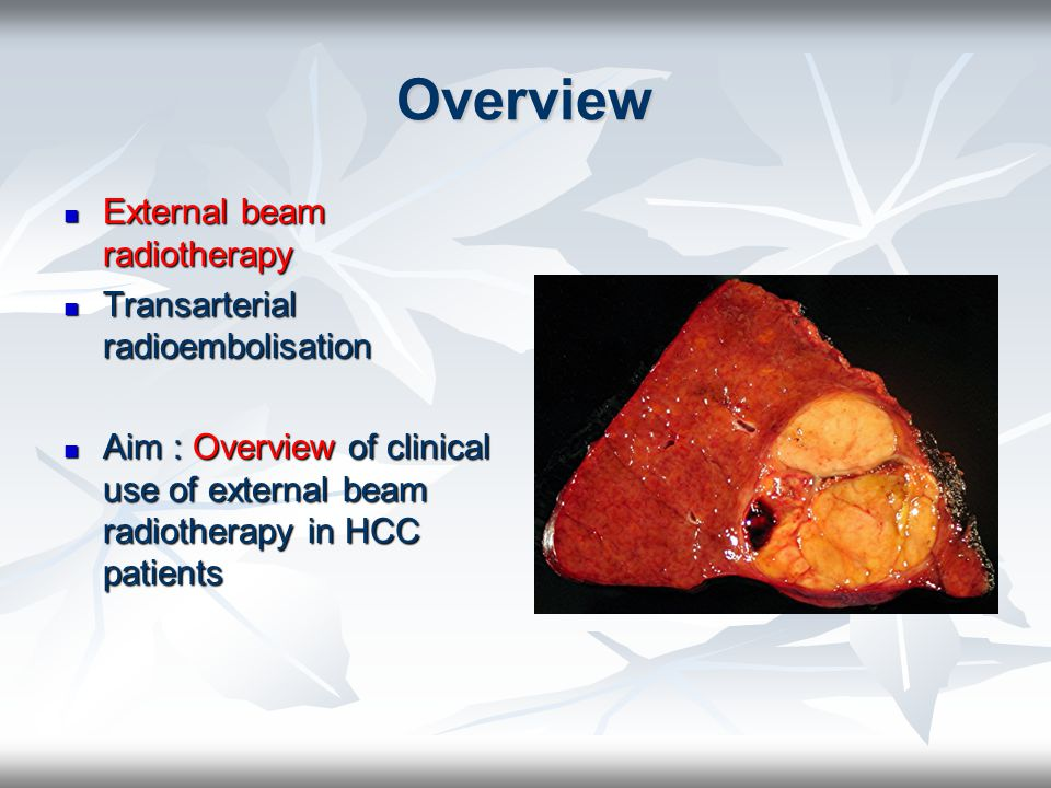 Overview External beam radiotherapy Transarterial radioembolisation