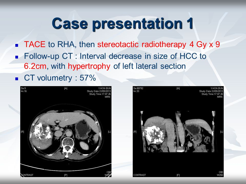 Case presentation 1 TACE to RHA, then stereotactic radiotherapy 4 Gy x 9.