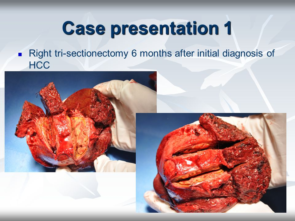 Case presentation 1 Right tri-sectionectomy 6 months after initial diagnosis of HCC