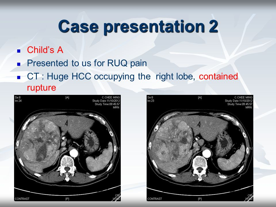 Case presentation 2 Child's A Presented to us for RUQ pain