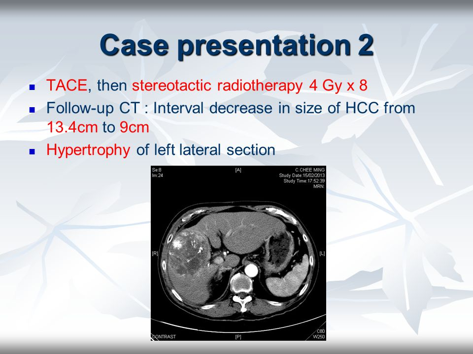 Case presentation 2 TACE, then stereotactic radiotherapy 4 Gy x 8