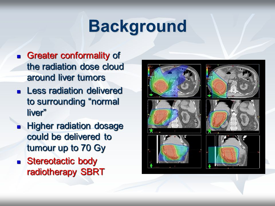 Background Greater conformality of the radiation dose cloud around liver tumors. Less radiation delivered to surrounding normal liver